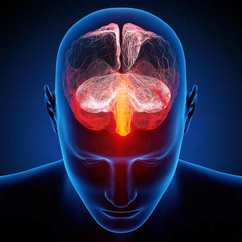 All Natural Headache and Migraine Therapy for Agoura Hills CA
