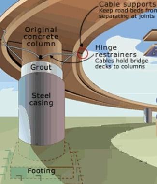 Application of Class P Type of Column Casing