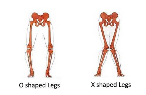 Leg deformities are common orthopedical issues.