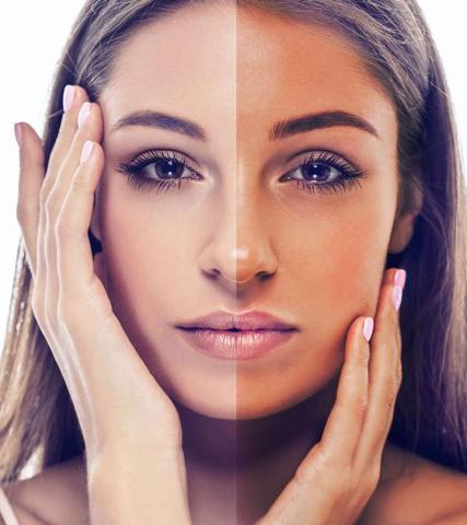 Contrast light vs tan skin