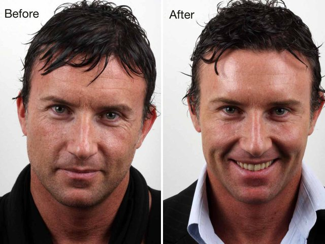 Rejuvenation treatment: before and after