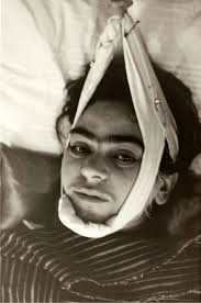 Frida Kahlo traction 1