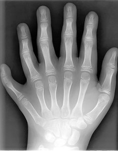 6-fingers