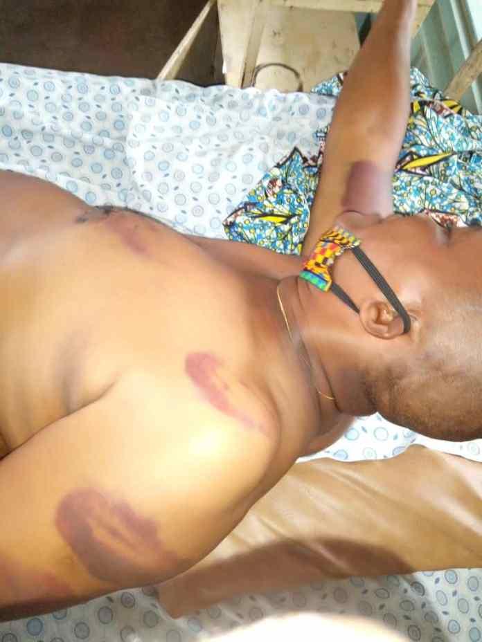 Native doctor chops off son's fingers, imprisons him for 4weeks 3