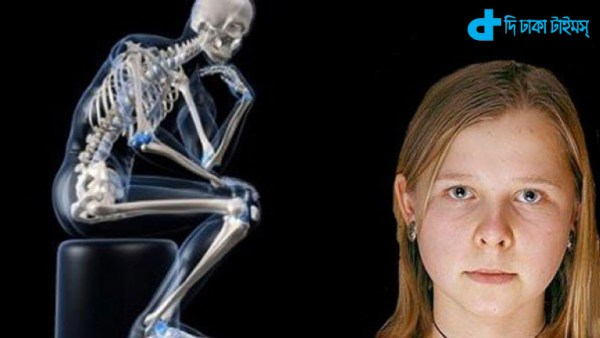 the X-ray & woman