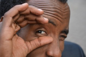Diabetic Retinopathy Breakthrough Could Prevent Blindess