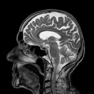 大脑扫描 -- 什么是链接之间血糖水平和脑肿瘤