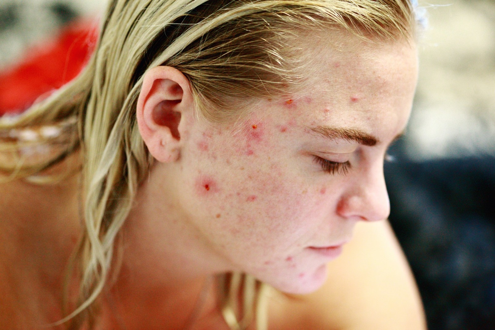 hormonal-acne-diet