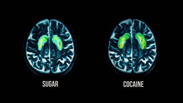 brain imaging showing the effecdts of cocaine and sugar