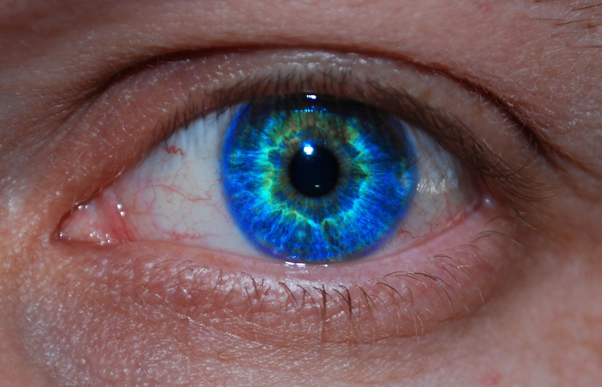 A Little Lump Or Bump On The Eyelid Beware It Could Be Skin Cancer