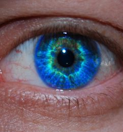 eyelid basal cell carcinoma [ 2048 x 1318 Pixel ]