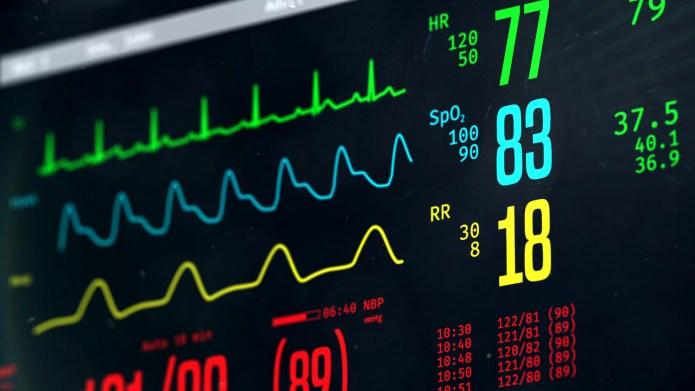 ICU vital signs monitor 1500 x 844