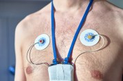 Man wearing 24 hrs electrocardiogram monitor device on his chest 750 x 500