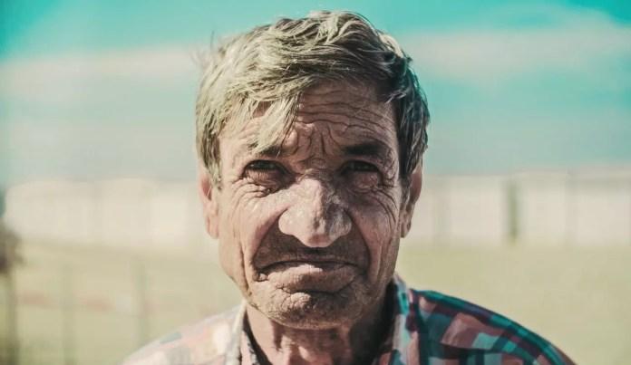 Man with severely sun damaged skin 1280 x 742