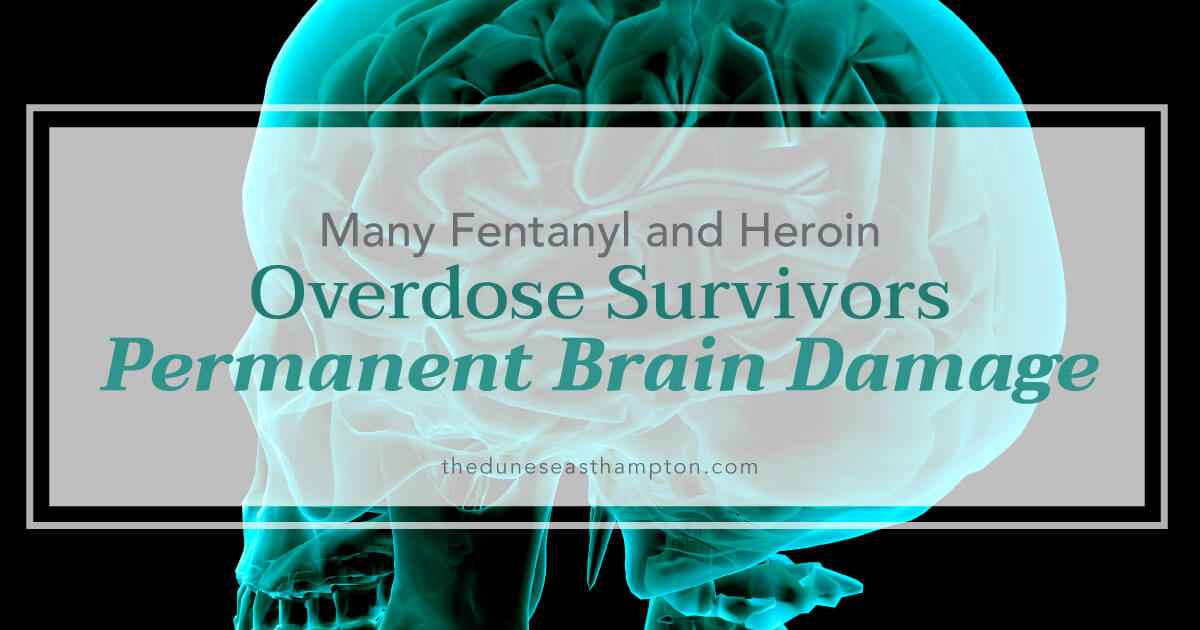 Fentanyl  Heroin Overdose Survivors Suffering Permanent Brain Damage