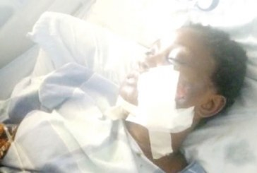 Woman shot by police lover still hospitalized after four surgeries