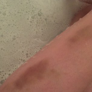 Bruises I got from just itching my thighs.