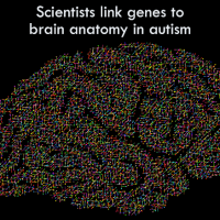 Scientists link genes to brain anatomy in autism