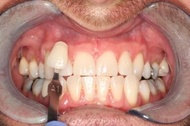 My teeth after