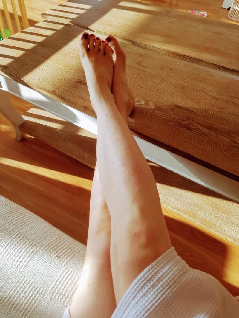 mild psoriasis on legs