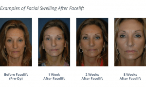 Swelling After a Facelift: What You Need to Know | Facial ...