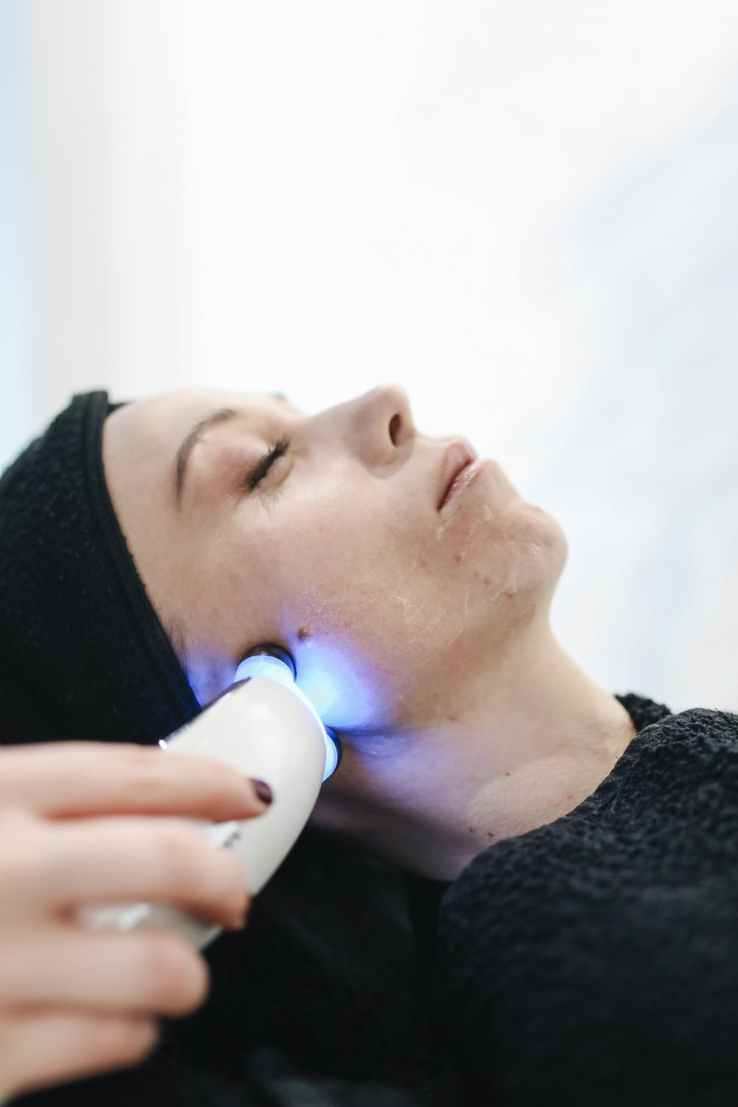 beauty, laser hair removal