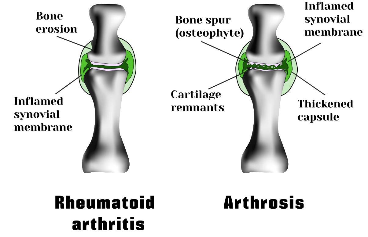 arthiritis