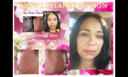 Acne Skin Care Routine – How I cleared my skin