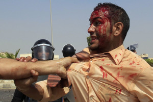 Egypt brutality.  Image Source: Global Panorama, Flickr, Creative Commons