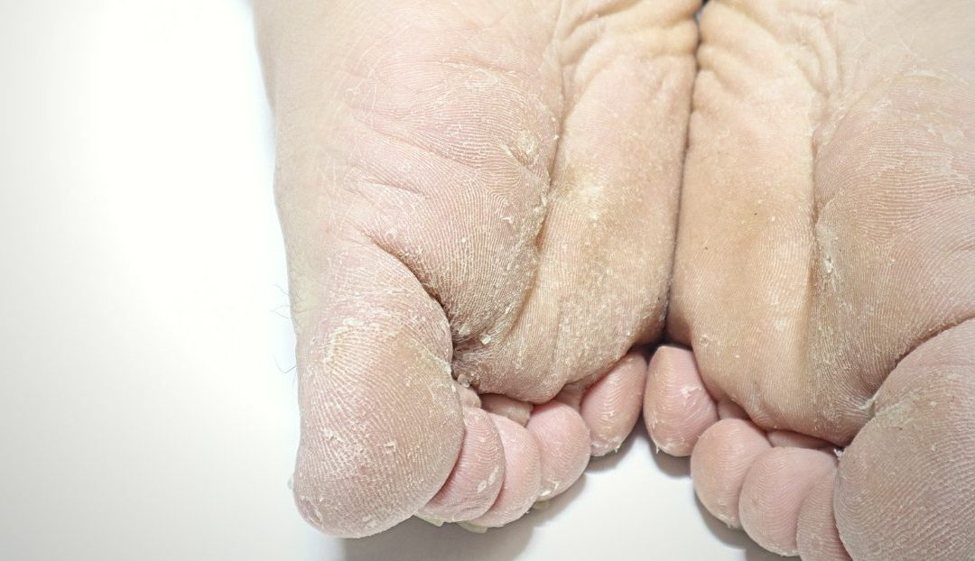 Its only athletes foot…don't freak out…