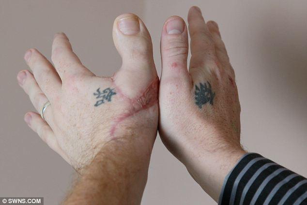 Man has a toe as his thumb