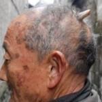 Man grows horn on his head