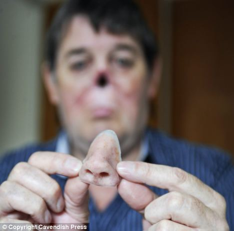 prosthetic nose2