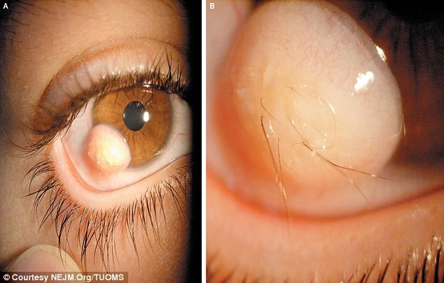 bizarre medical hairy eyeball