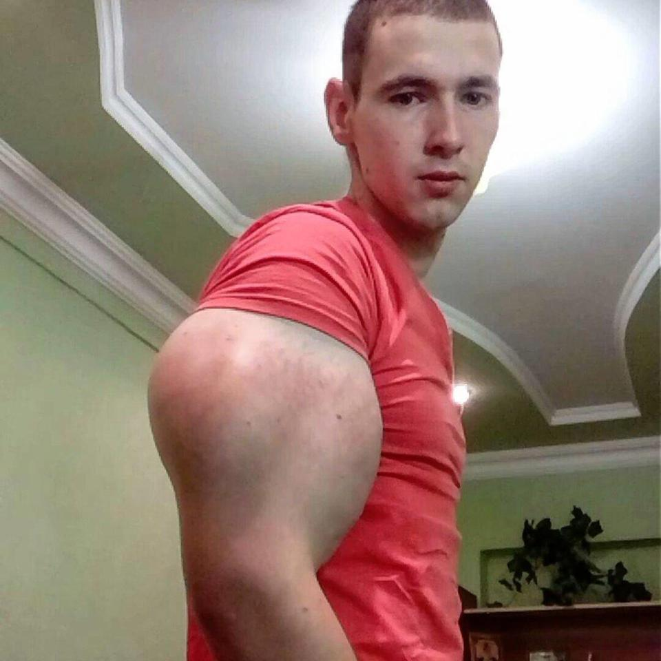 Man Injects Oil to Get Strange Looking Arms