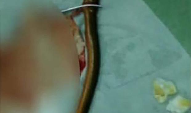 eel man surgery