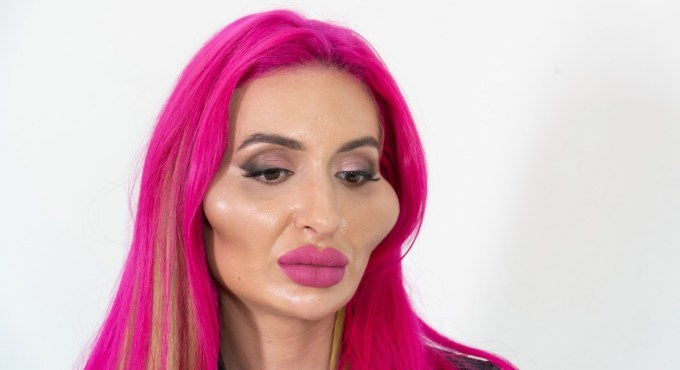 freaky person extreme cosmetic surgery