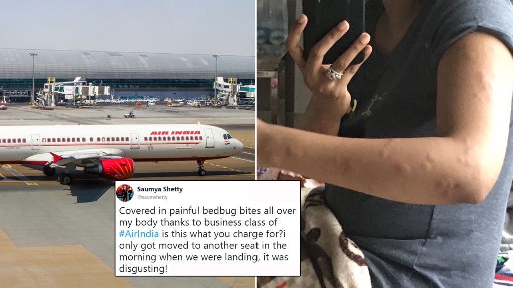 Passengers' shares disturbing picture of bed bug bites from Air India Business Class