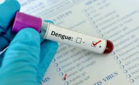 Four more dengue cases surfaced in Faisalabad