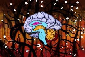 brainalzheimers