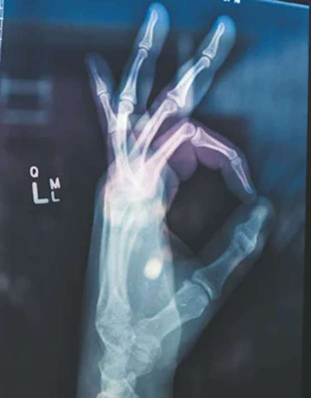 x-ray of hand doing ok sign