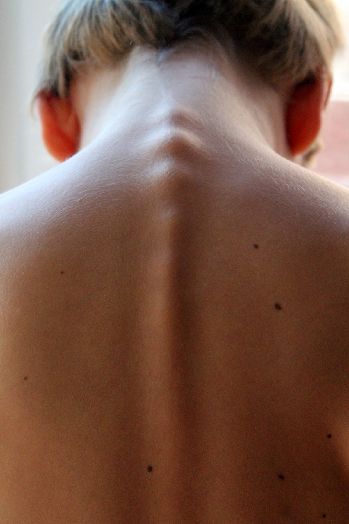 The back of a person's neck
