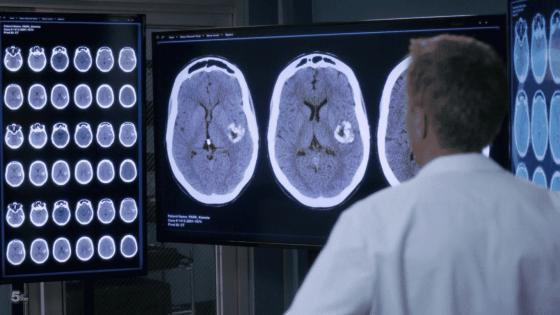 koracick sees kimmys tumor