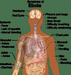 ebola virus disease epidemic [ 1014 x 1024 Pixel ]