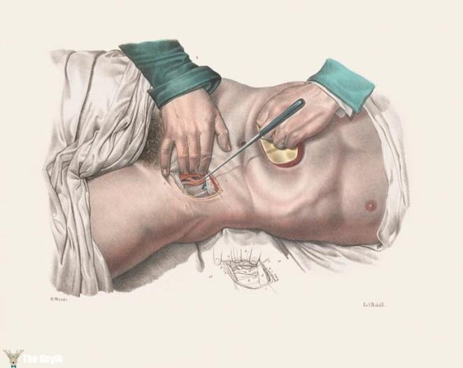 19. yydan cerrahi çizimler 9