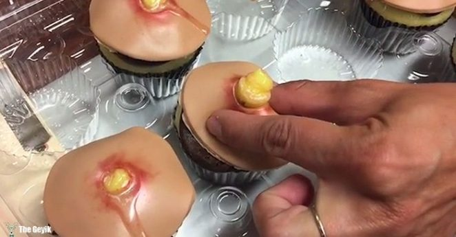 sivilce-cupcakes2