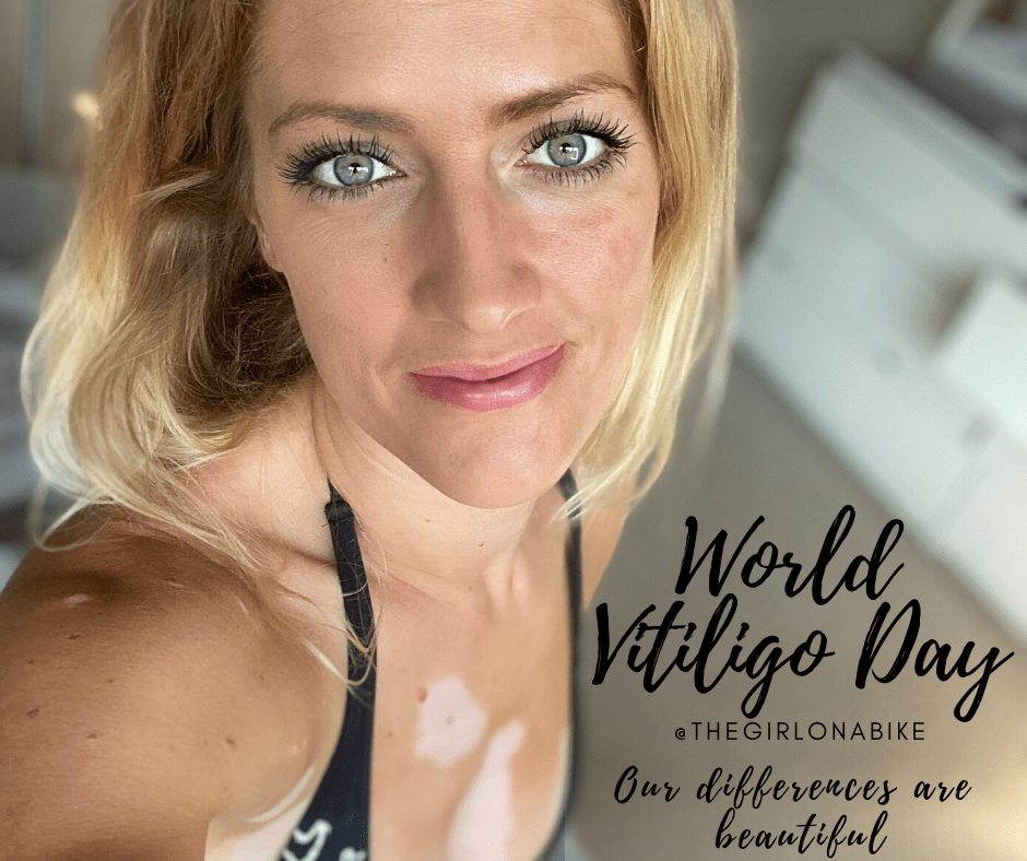 World Vitiligo Day