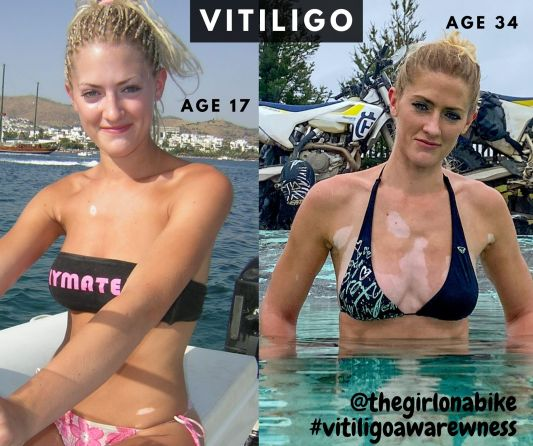 Vitiligo how it spreads - Vanessa age 17 and 34