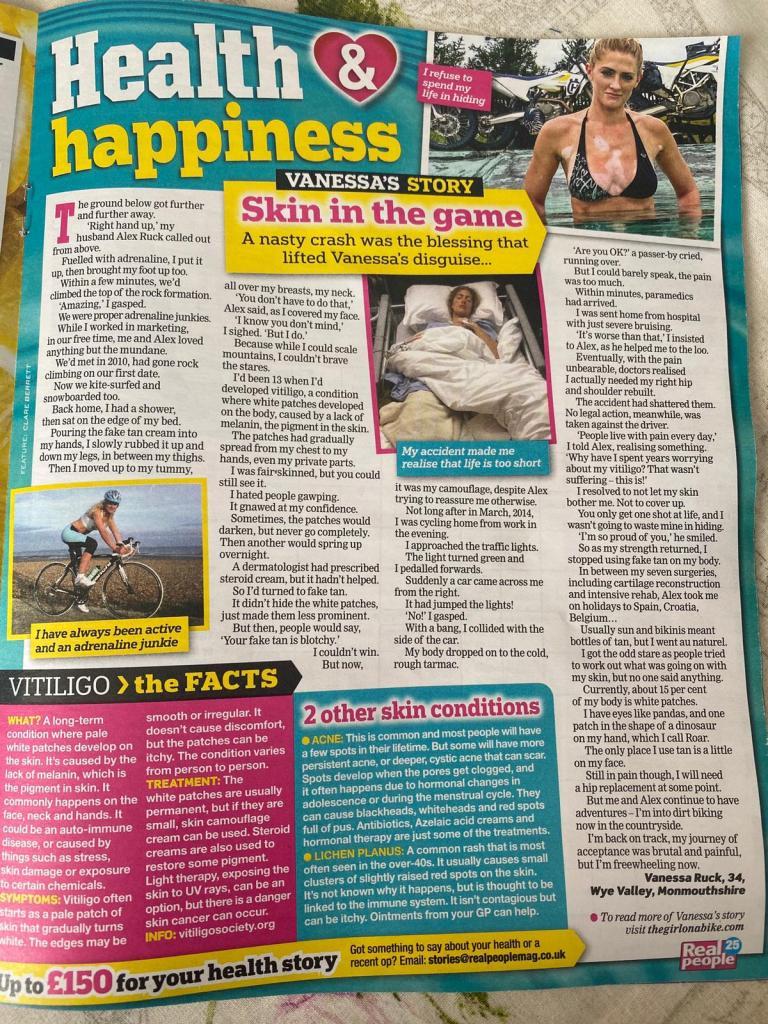 the girl on a bike vanessa ruck news media real people magazine vitiligo