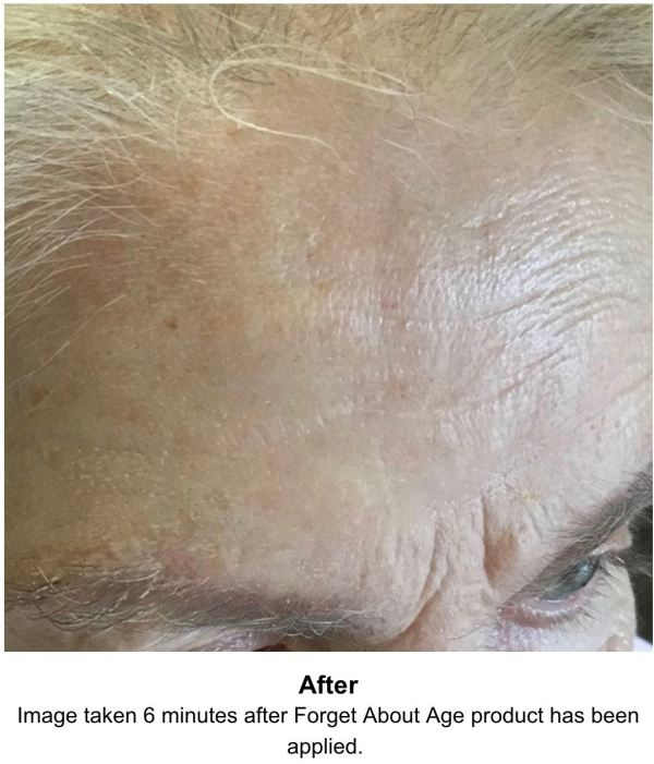 Anti-wrinkle peptide | the glow clinic